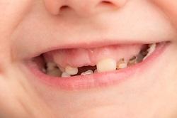 歯の少ない人の歯ぎしり
