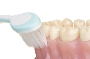 糖尿病の方の歯周病ケア