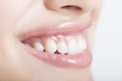 歯茎から出血。改善する4つのポイント